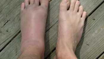 Ушиб ноги лечение в домашних условиях мази