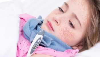 Болезнь скарлатина детей симптомы