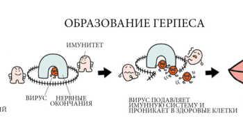 Передается ли герпес от матери к ребенку