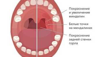 Миндалины лечение в домашних условиях