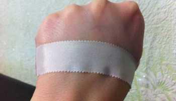 Может ли быть аллергия на лейкопластырь