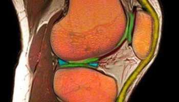 Мениск коленного сустава симптомы фото лечение