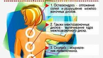 Болит спина причины лечение
