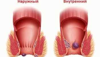 Лечение геморроя каштаном в домашних условиях