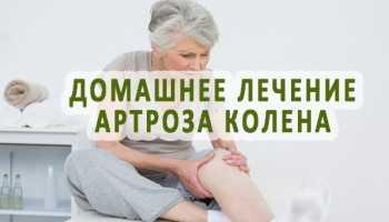 Лечение суставов колена народными методами