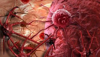 Лейкоз у детей симптомы и лечение