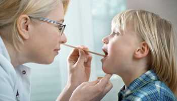 Ларингит у детей симптомы фото