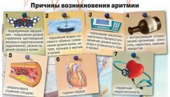 Эффективные методы лечения аритмии народными средствами
