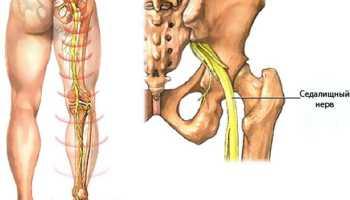 Ущемление седалищного нерва симптомы и лечение