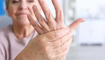 Артрит рук симптомы и лечение