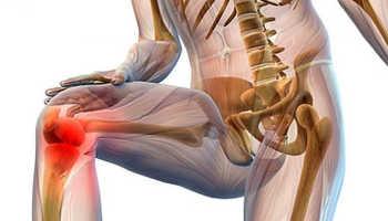 Лечение сустава колена в домашних условиях
