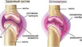 Остеоартроз лечение в домашних условиях